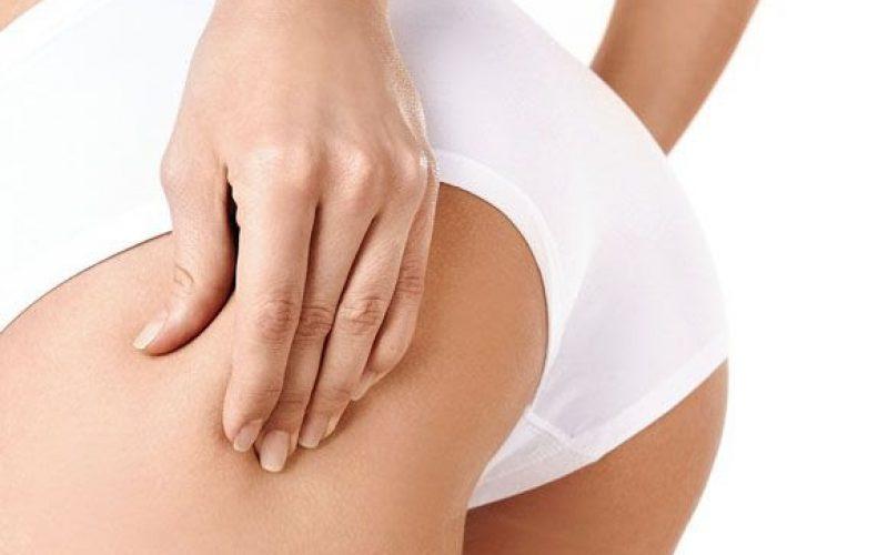 Celulite pode ser tratada