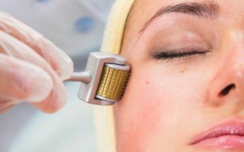 Ação do Microagulhamento na acupuntura estética facial