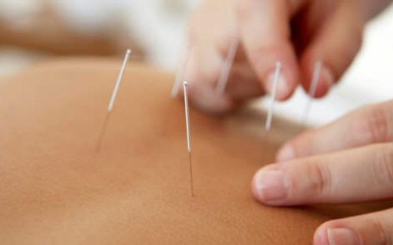 Acupuntura pode aliviar sintomas da menopausa, dizem especialistas