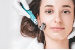 Microagulhamento: técnica renova a pele e reduz manchas