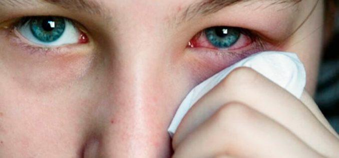 6 passos para se proteger das alergias oculares de inverno