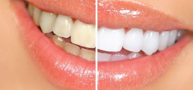 Clareamento dental – tire suas dúvidas