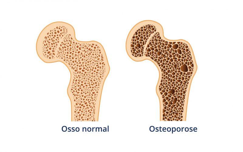 O papel da fisioterapia na prevenção e tratamento da osteoporose