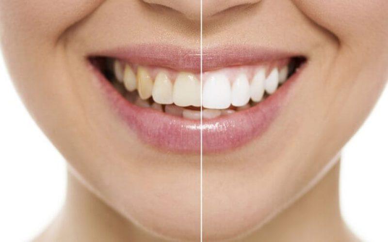 Clareamento pode deixar os dente de 2 a 3 tons mais claros